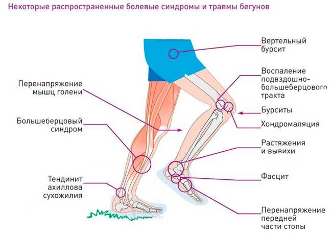 Почему болит надкостница на ноге